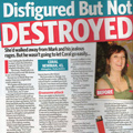 The Coral Newman Story - Disfigured byt not destroyed